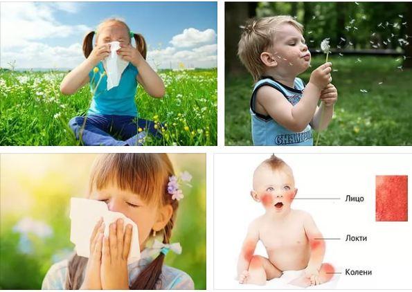аллергия при приеме капецитабина